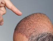 الأسباب التي تجعلك مرشحًا لإجراء عملية زراعة الشعر