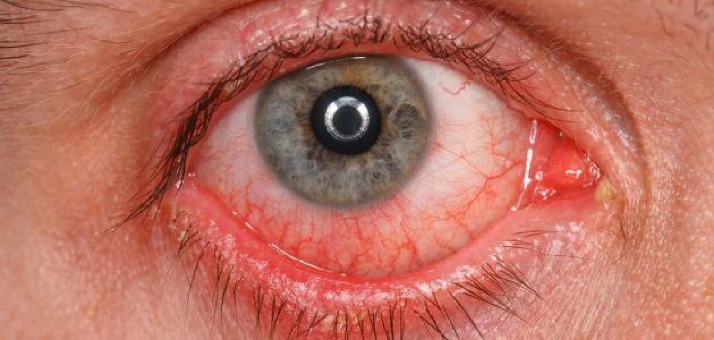 استشارية توضح 9 أسباب لـ«احمرار العيون»