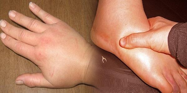 كيف تقضي على احتباس السوائل في جسمك؟